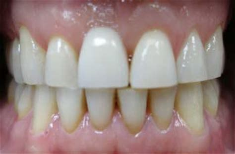 Dental Cosmetic and Teeth Whitening Service Gallery