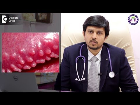Pathology Outlines - Pearly penile papules