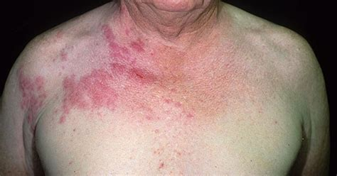 What Does Shingles Look Like? | FindATopDoc